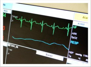 EKG (c) Pixelio
